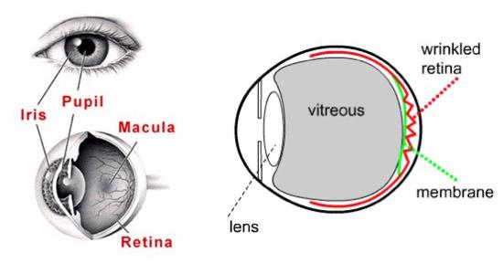 Epiretinal Membrane Surgery – Durban Retinal Associates